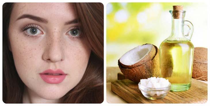 Hỗn hợp dầu dừa và chuối giúp xóa mờ vết tàn nhang trên da