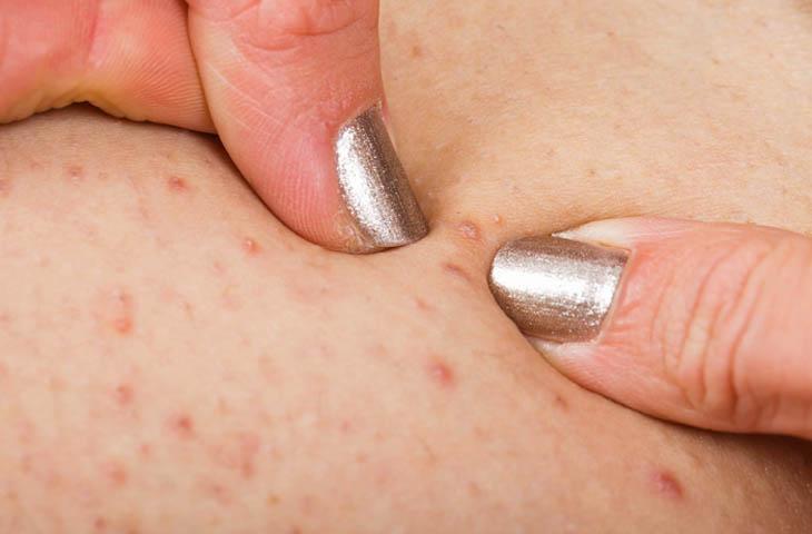 Viêm nang lông là vấn đề da liễu phổ biến hiện nay