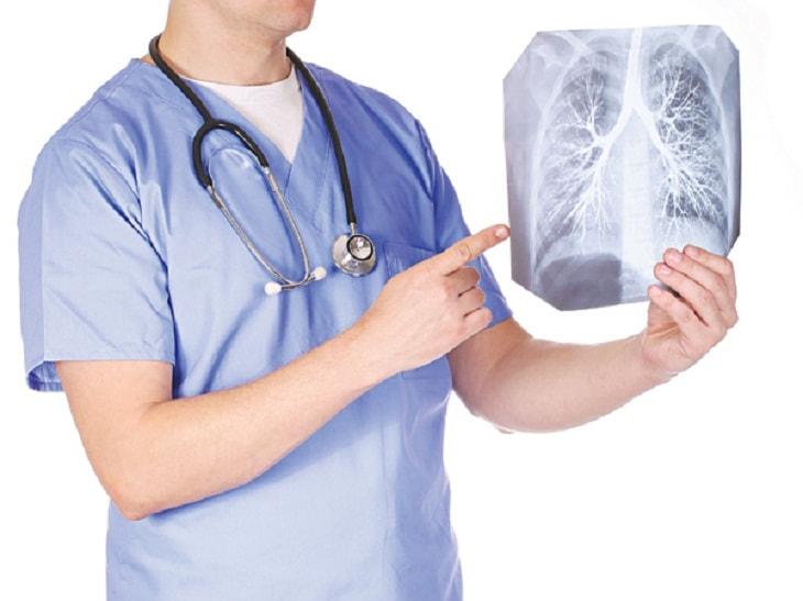 Viêm xoang mạn tính có thể gây viêm phế quản