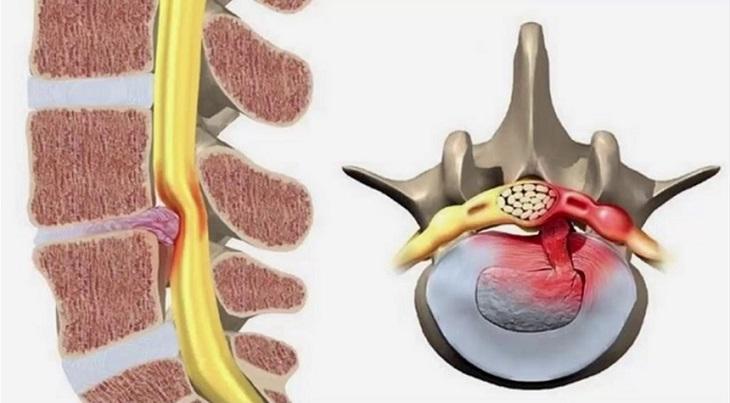 Rách vòng xơ đĩa đệm là bệnh lý nguy hiểm, cần sớm được điều trị