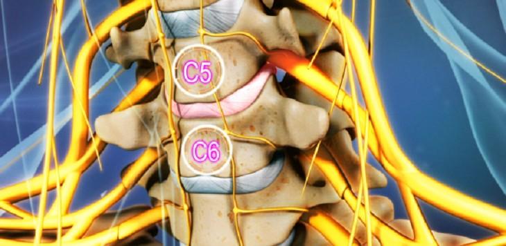 Thoát vị đĩa đệm cổ C5 C6 là bệnh lý rất nguy hiểm, có thể gây liệt vĩnh viễn