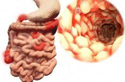 Bệnh crohn là hội chứng viêm loét thành ruột già và ruột non