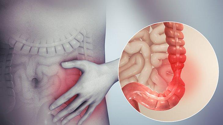 Viêm đại tràng co thắt là bệnh lý phổ biến, xảy ra do nhiều nguyên nhân khác nhau