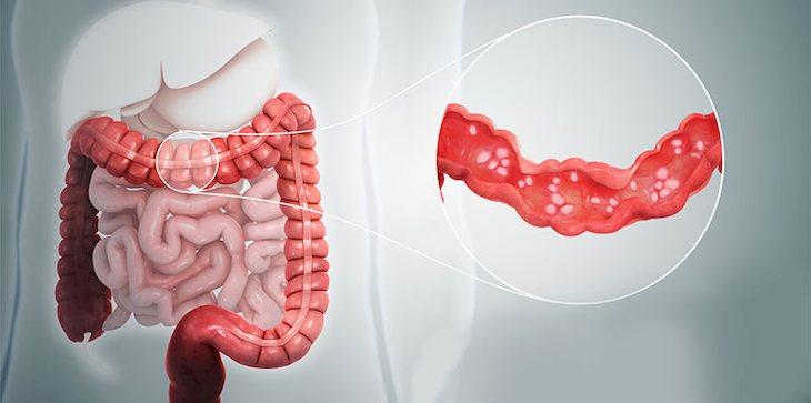 Viêm đại tràng co thắt không điều trị kịp thời dễ dẫn đến biến chứng ung thư