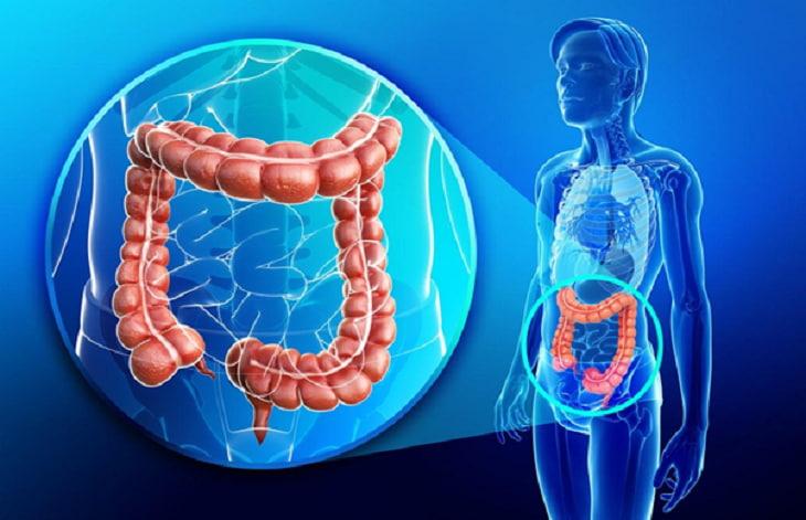 Ung thư đại tràng giai đoạn cuối đe dọa nghiêm trọng đến sức khỏe của người bệnh