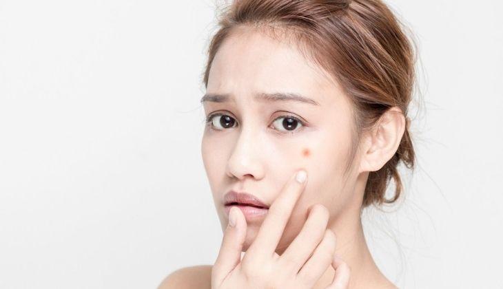 Mụn bọc ở má cần tiến hành điều trị ngay để không gây hại cho da