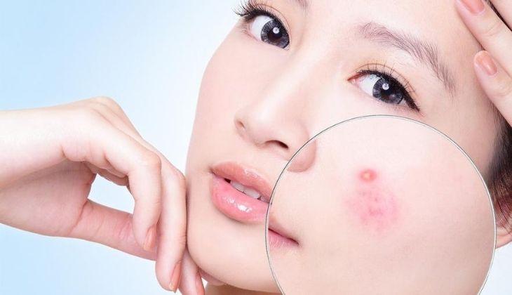 Hạn chế nặn mụn vì nó có thể khiến mụn dễ bị viêm nhiễm nghiêm trọng hơn