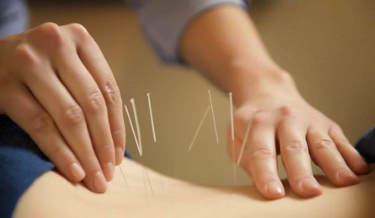 Châm cứu cũng là một trong những cách chữa đau dây thần kinh liên sườn bằng Đông y được đánh giá rất cao