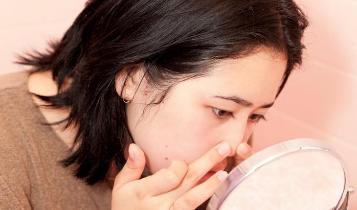 Khi tiến hành nặn mụn bọc cần hết sức đảm bảo an toàn, tránh nhiễm trùng
