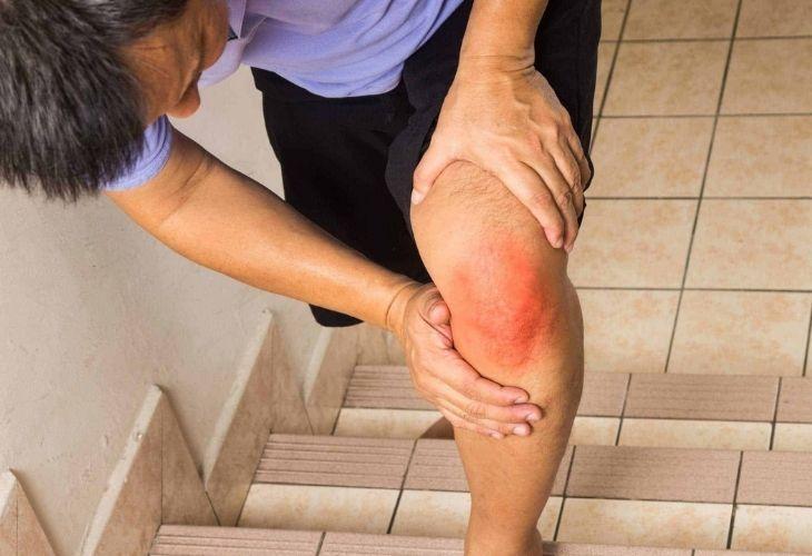 Điều trị sớm khô khớp để ngăn chặn biến chứng không đáng có