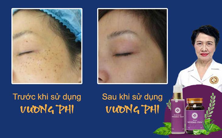 Hiệu quả điều trị nám, tàn nhang của người bệnh sau khi sử dụng bộ sản phẩm Vương Phi do Trung tâm Da liễu Đông y Việt Nam cung cấp