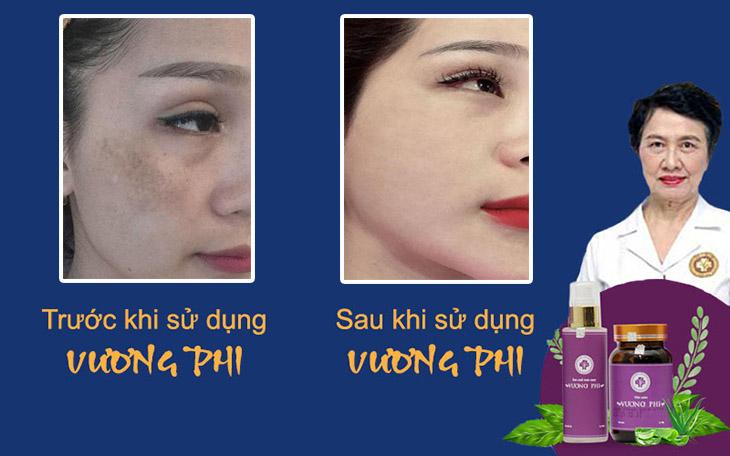 Làn da hết nám, căng mịn và đều màu của bệnh nhân sau khi sử dụng Vương Phi