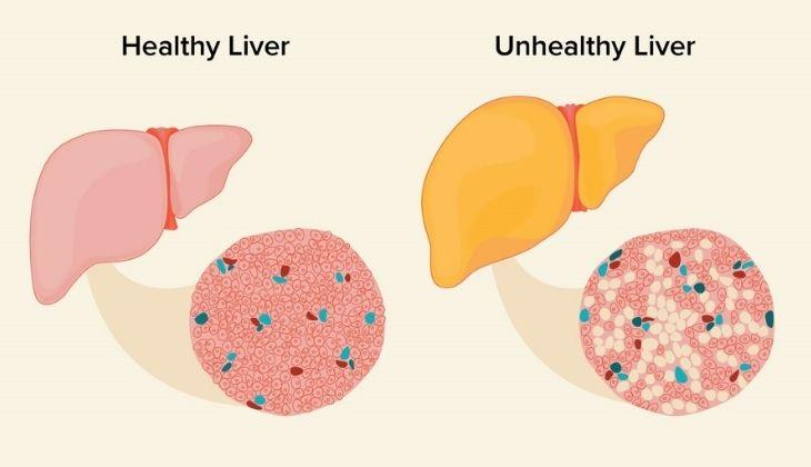 Nhiệt miệng do chức năng gan suy giảm