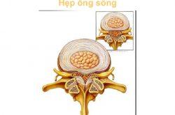 hep ong song tc