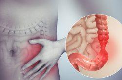 Hội chứng ruột kích thích là tình trạng rối loạn tiêu ảnh hưởng đến sức khỏe và cuộc sống của người bệnh
