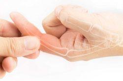 Khô khớp tay là triệu chứng có thể gặp ở bất kỳ ai