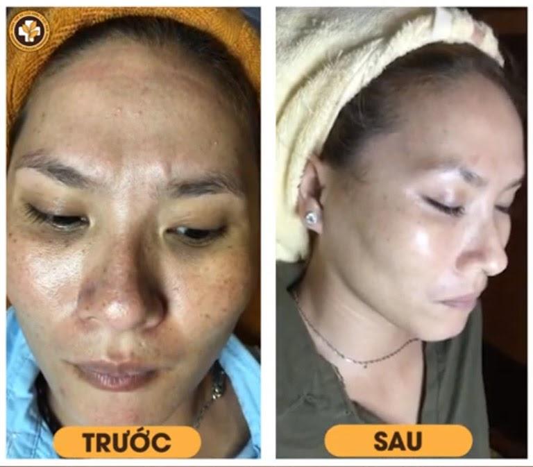 Bệnh nhân Lê Hồng Màu trước và sau khi điều trị nám tàn nhang bằng Vương Phi