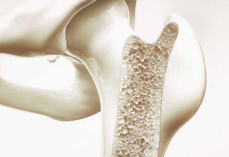 Loãng xương là bệnh lý liên quan đến mật độ và chất lượng cấu trúc xương