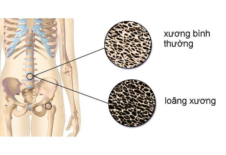 Chất lượng xương giảm đi khi tuổi tác tăng lên