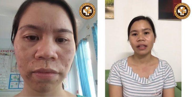 Làn da của khách hàng Phạm Thị Nụ (37 tuổi, Bình Phước) trước và sau khi sử dụng Vương Phi