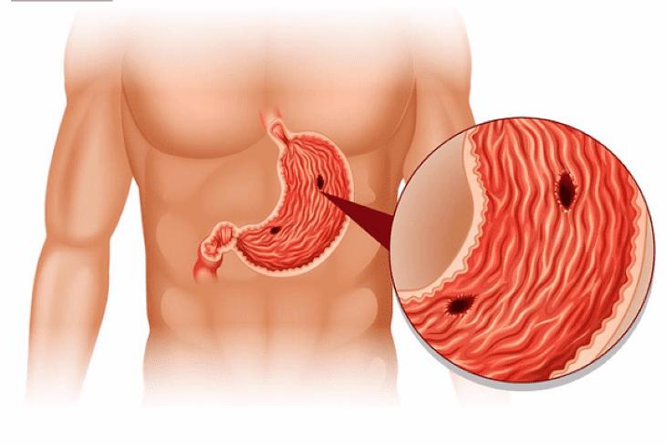 Phúc bồn tử có tác dụng làm lành vết viêm ở dạ dày hiệu quả