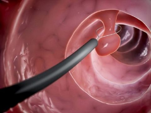 Polyp đại tràng: Nguyên nhân, dấu hiệu và bài thuốc điều trị tốt nhất hiện nay