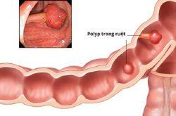 Polyp đại tràng sigma là hiện tượng niêm mạc đại tràng có khối u