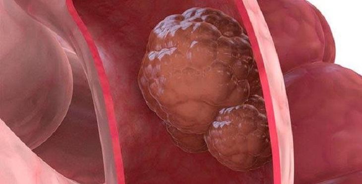 Polyp đại tràng sigma có thể biến chuyển thành ung thư
