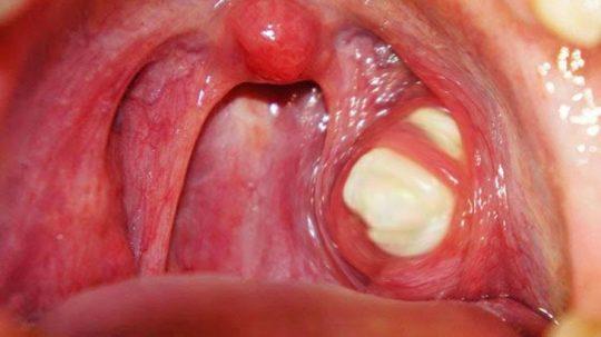 Mức độ nguy hiểm của sỏi amidan phụ thuộc vào kích thước của sỏi