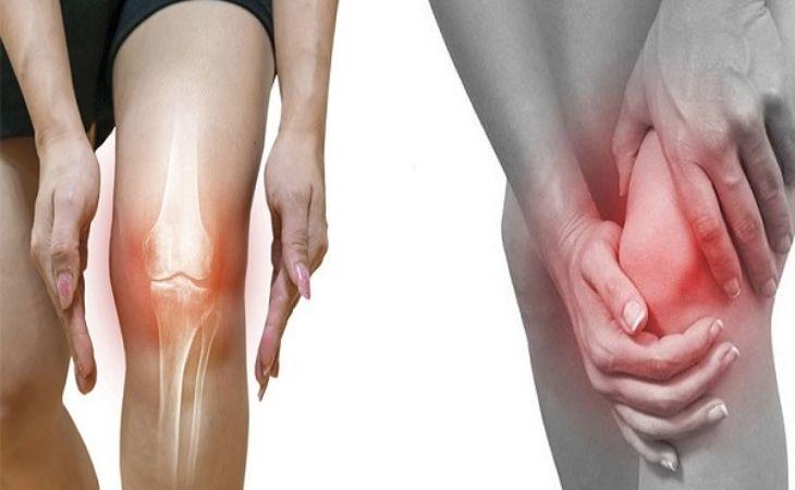 Thoái hóa khớp gối có chữa được không là lo lắng của nhiều bệnh nhân bởi bệnh gây ra nhiều biến chứng nguy hiểm