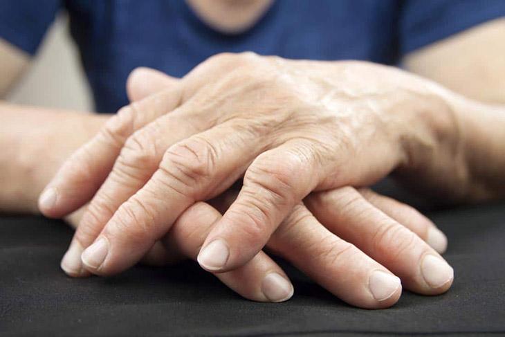 Bệnh có thể khiến các khớp bị sưng, biến dạng