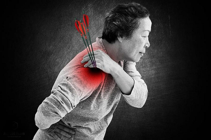 Đau nhức khó chịu do bệnh thoái hóa khớp