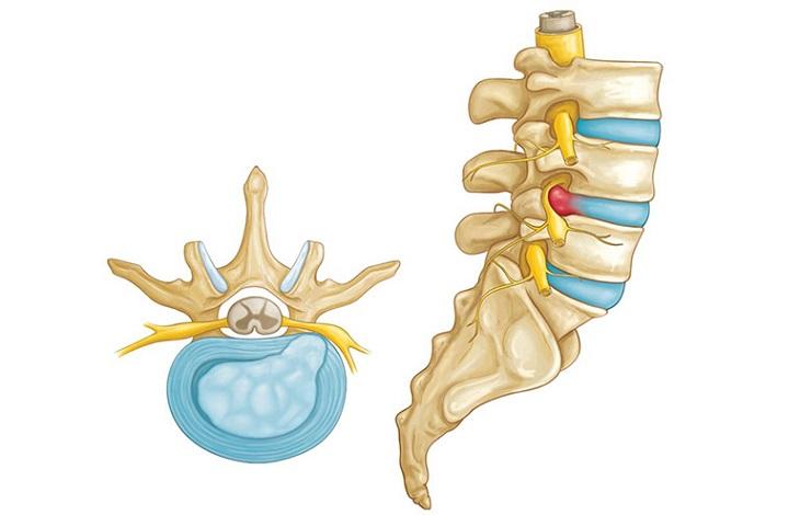 Thoát vị đĩa đệm cột sống thắt lưng là gì và những thông tin về bệnh
