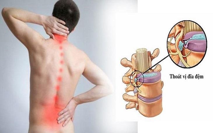 Làm việc nặng, ngồi sai tư thế và nhiều thói quen xấu dễ dẫn đến thoát vị đĩa đệm cột sống thắt lưng