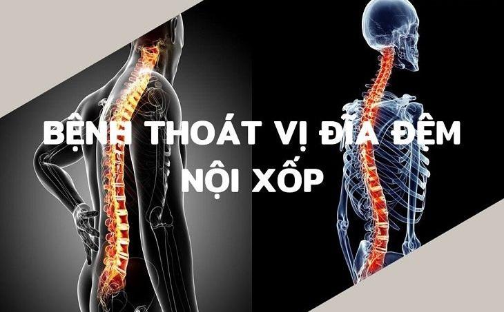 Thoát vị nội xốp là bệnh lý ở xương khá đặc biệt