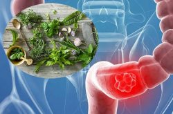 Cơn đau có thể cải thiện nếu người bệnh biết áp dụng cách dùng thuốc nam trị viêm đại tràng
