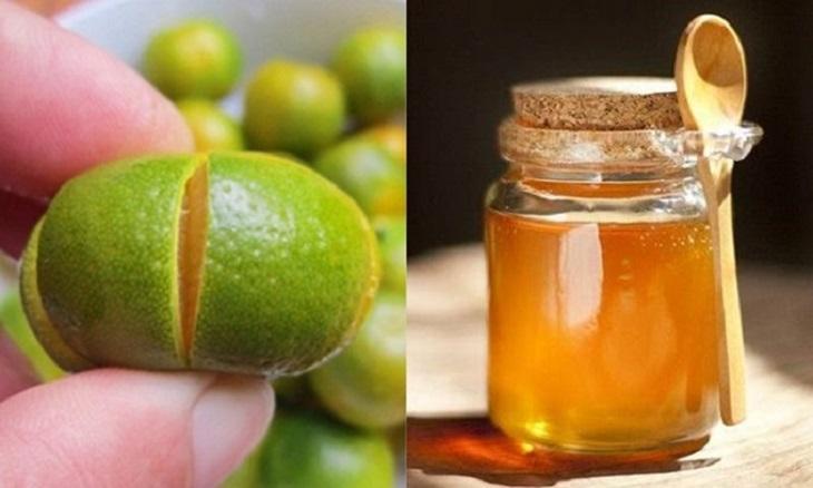 Siro quất mật ong giúp trị amidan lưỡi hiệu quả