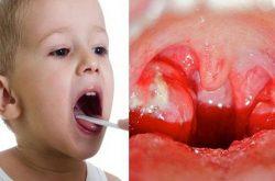 Viêm amidan mủ ở trẻ em là gì?