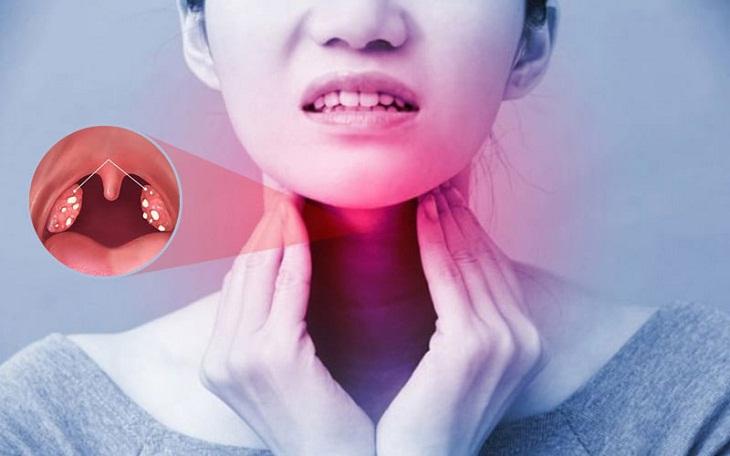 Viêm amidan ở người lớn có thể do nhiều nguyên nhân gây ra