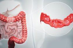 Viêm đại tràng cấp là tình trạng tổn thương của niêm mạc đại tràng