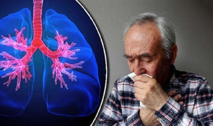 Viêm họng có đờm có thể làm tăng nguy cơ mắc bệnh phổi tắc nghẽn mạn tính