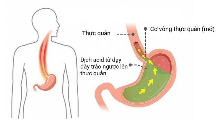 Nguyên nhân gây ra viêm họng trào ngược