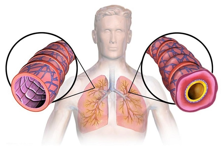 Viêm phế quản co thắt là một dạng bệnh cấp tính của hệ hô hấp
