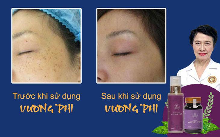 Kết quả sau khi sử dụng Vương Phi điều trị nám sau sinh của mẹ một con Ngọc Hương