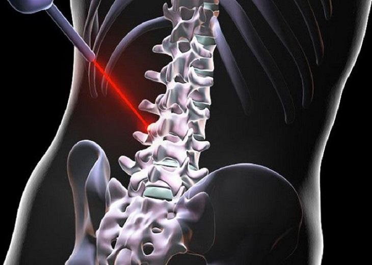 Điều trị thoát vị đĩa đệm bằng laser là phương pháp tân tiến, không gây đau đớn, được bác sĩ khuyên dùng