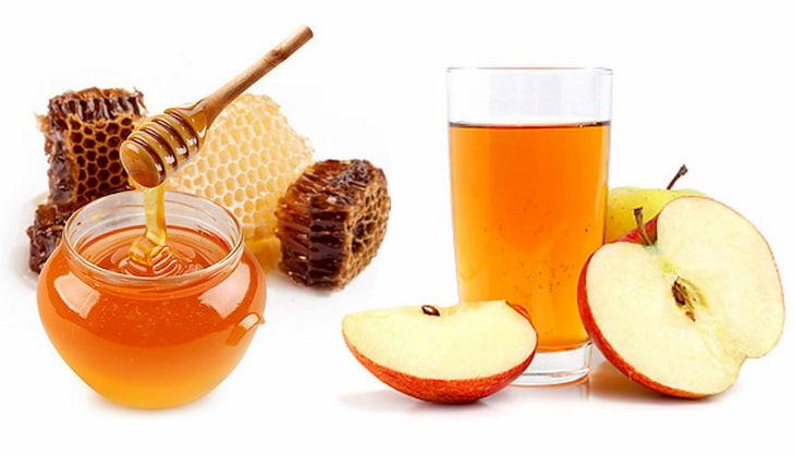 Mật ong kết hợp giấm táo có công dụng trị mụn đầu đen ở mũi