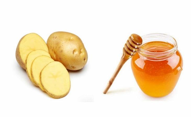Trong khoai tây có dưỡng chất giúp làm giảm vết thâm, loại bỏ mụn nhanh chóng
