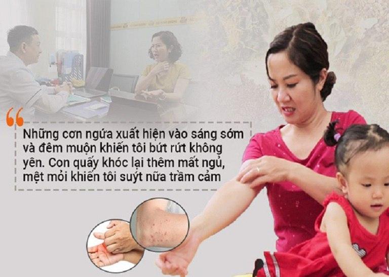 Diễn viên Nguyệt Hằng khổ sở vì mề đay sau sinh