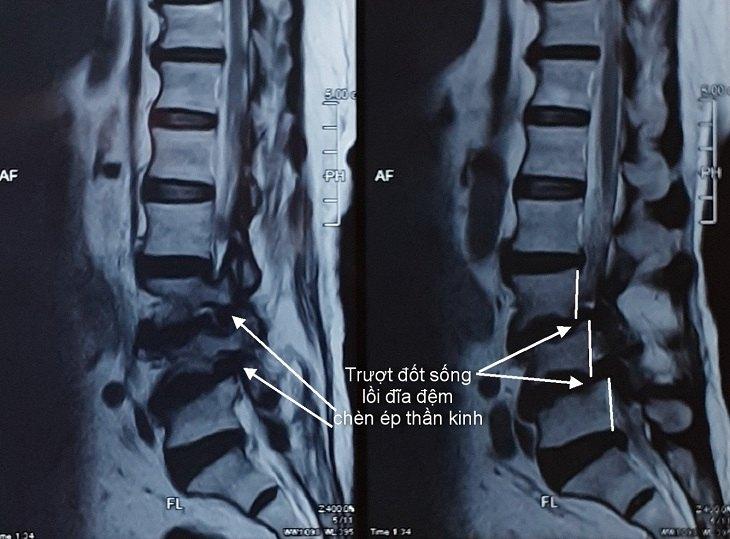Chụp MRI thoát vị đĩa đệm cần thực hiện khi người bệnh có các dấu hiệu bệnh