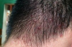 Nguyên nhân gây mụn trứng cá trên da đầu là gì?